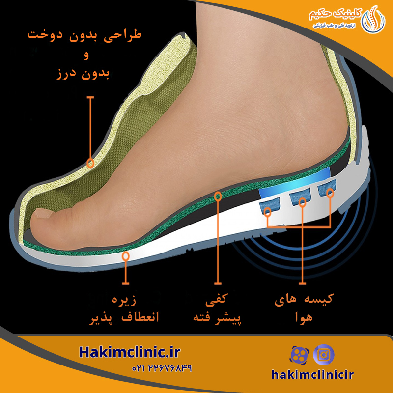 ساخت کفش دیابتی