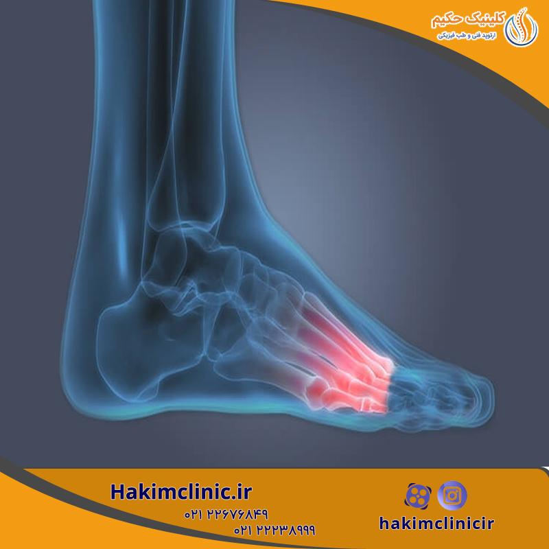 درد پا، علل، انواع و روش های درمان