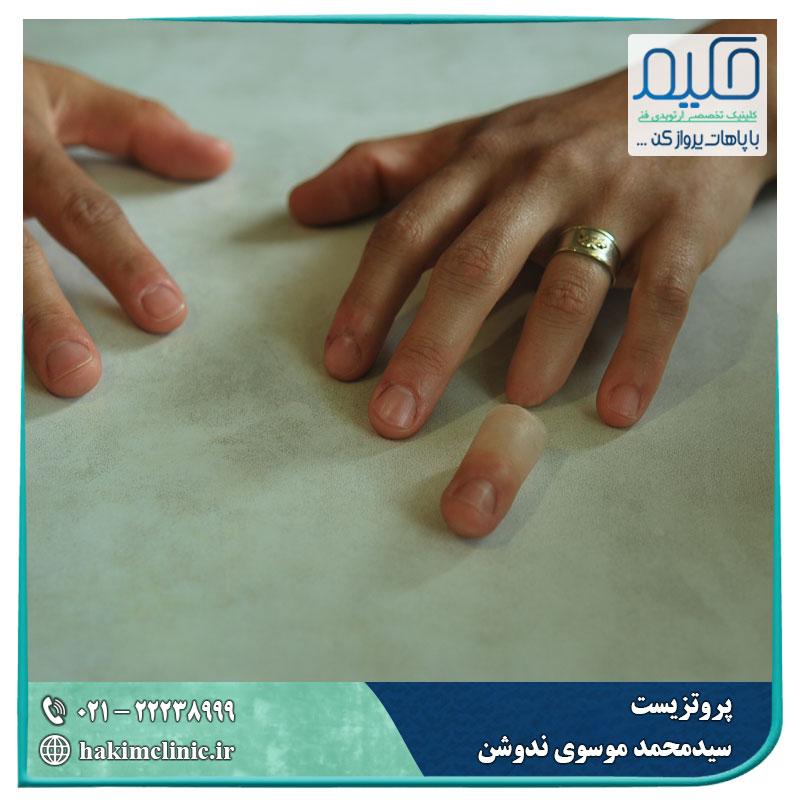 انگشت مصنوعی