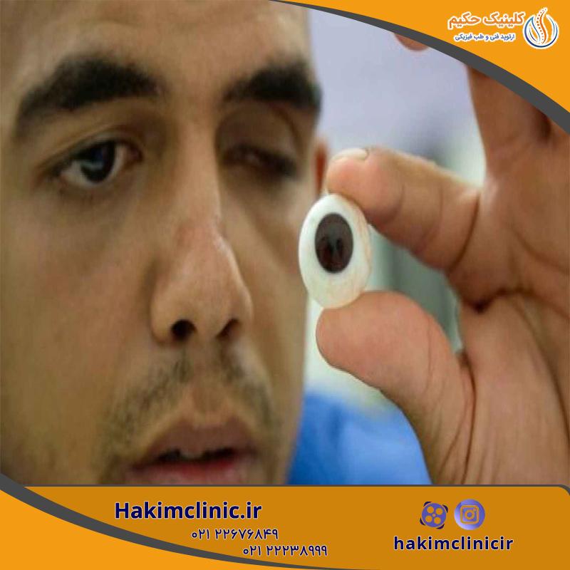 پروتز چشم چیست