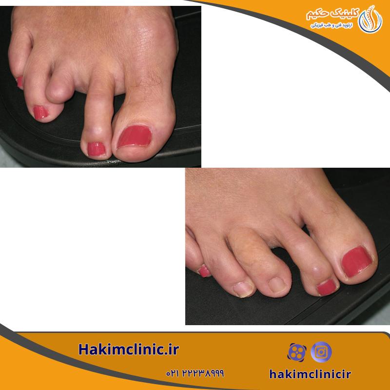 پروتزهای جزئی پا و پروتزهای انگشت پا