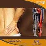 درد سیاتیک، علايم، علل و درمان آن
