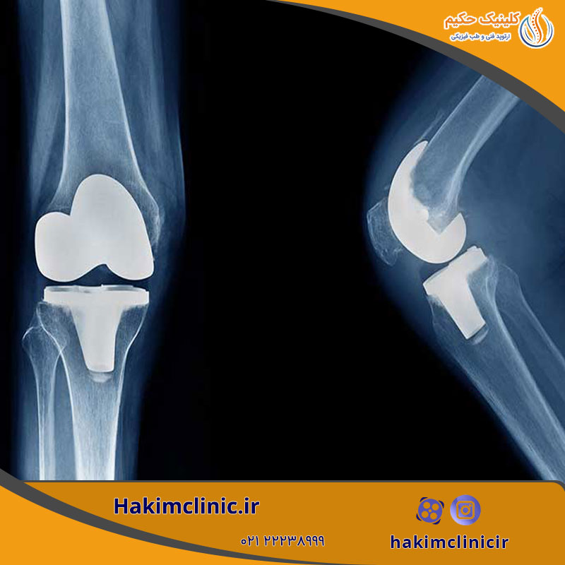 جراحی تعویض مفصل زانو یا آرتروپلاستی