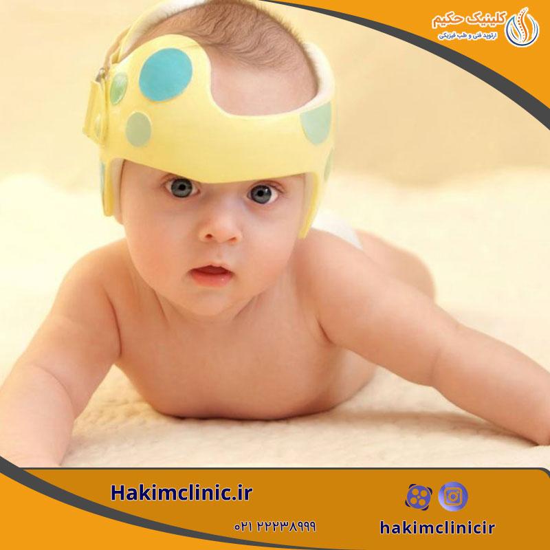 کلاه مخصوص تغییر شکل سر نوزادان