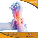دلایل، علائم و درمان سندرم تونل کارپ