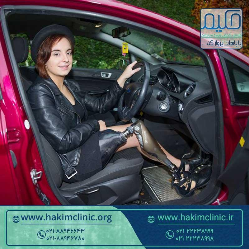 رانندگی با پروتز