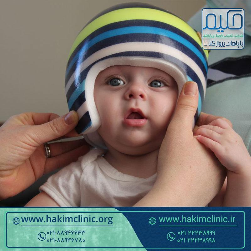 عملکرد و تاثیر کلاه فرم دهی سر نوزاد