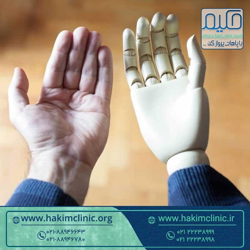 جدیدترین پروتزهای دست مصنوعی چگونه ساخته می شوند؟