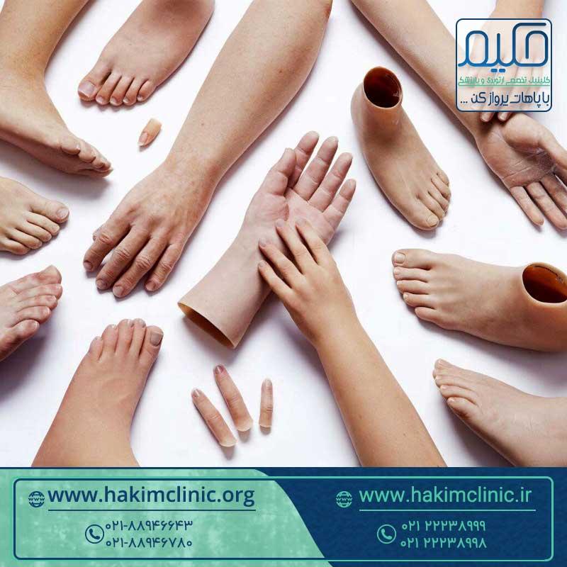 کاربرد انواع پروتز دست و پا
