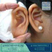 استفاده از پروتز گوش چه مزایا و معایبی دارد